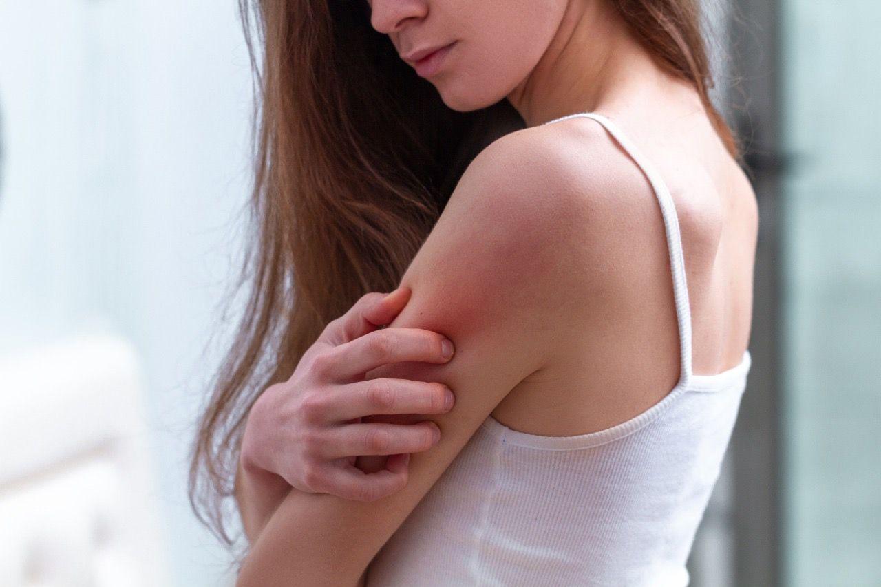 <p>La&nbsp;Dermatitis At&oacute;pica desaf&iacute;a a pacientes,&nbsp;profesionales de la salud y pol&iacute;ticos de todo el mundo</p>